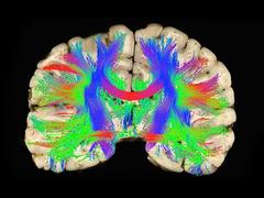 Biomechanics--Concussions