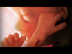 Alexander Tsiaras: Conception to birth -- visualized